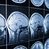 Getting Rehabilitation After A Brain Accident